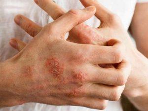 درمان اگزما